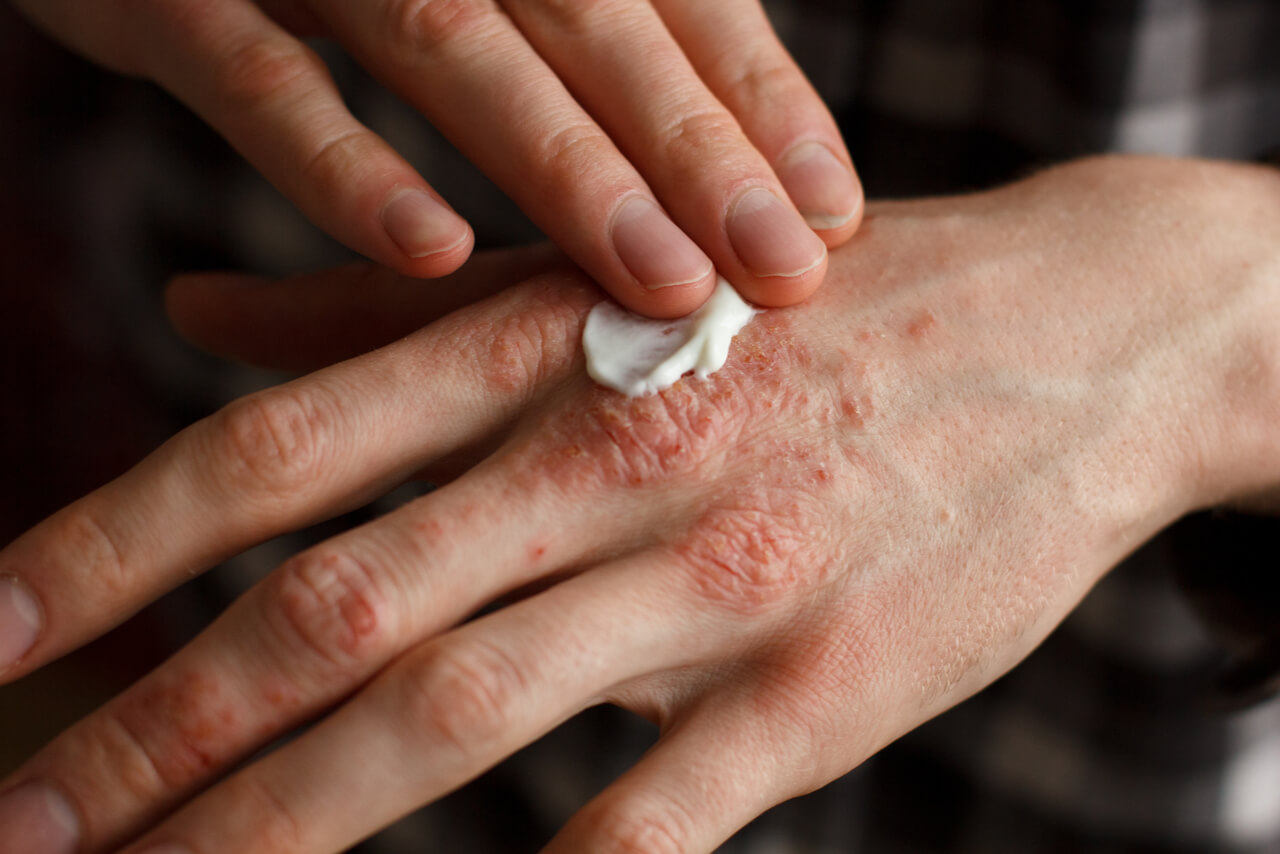 The Food Factor and Psoriasis